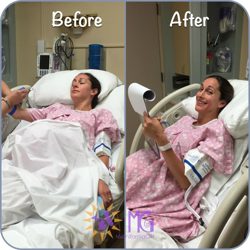 before and after pictures pre-epidural and post epidural
