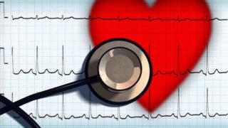 stethoscope and ekg over heart 24-hour heart monitor
